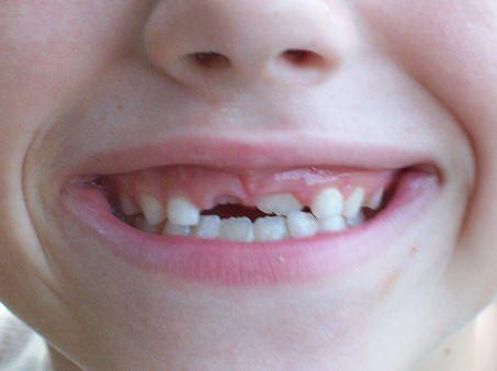 Izpadanje zob