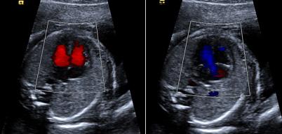 Morfološka ocena plodovega srca s pomočjo barvnega Dopplerja