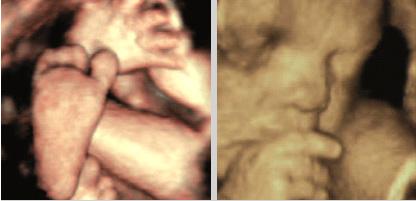 3D morfološka ocena ploda v drugem trimesečju: podplatki so dolgi 4–5 cm in 3D ocena obraza – ni vidnih nepravilnosti