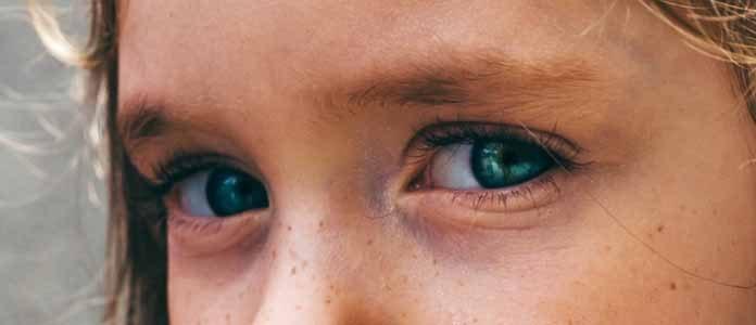 Vnetje očesne veznice